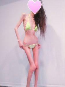 「人生就是减肥」女仅30公斤仍不满足目标26公斤