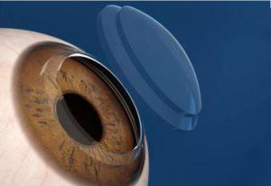 日本准备对受损的角膜进行 重新编程 的干细胞治疗