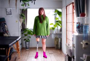 日本假肢女孩成为全球知名模特--想做一些独具特色的事情