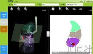 京大用芯片锁定肺癌部位的手术成功 减少切除部位