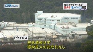 鹿儿岛一人确诊疱疹B病毒感染症日本境内首例