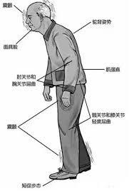日本培育模型实验鼠助力帕金森病研究